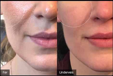 Sterkt redusert porestørrelse – etter kun 72 dagers bruk av BioSil. OBS! Førbildet er med makeup og etterbildet er uten makeup. Kvinne, ca. 30 år.