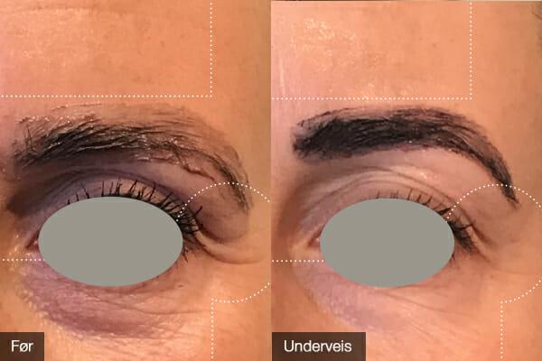 Ikke full effekt – kun brukt BioSil i 3,5 mnd. Kvinne ca. 37 år. Bilde tatt under øyenbrynsbehandling i salong hos Fred Hamelten.
