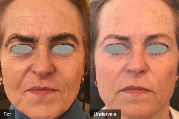 Ikke full effekt – kun brukt BioSil i 3,5 mnd. Kvinne 61 år.